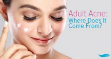Adult Acne: Where Does It Come From?