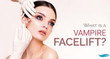 What Is A Vampire Facelift?