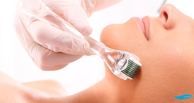 What Is Micro Skin Needling? | Woman receiving microneedling treatment | Jiva Spa Toronto anti aging facials beauty spa salon skin rejuvenation medispa