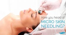 What Is Micro Skin Needling?