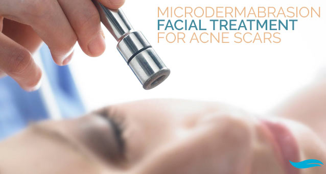 Microdermabrasion Treatment For Acne Scars | A woman receiving a microdermabrasion treatment | Jiva Spa Toronto anti aging facials beauty spa salon skin rejuvenation medispa