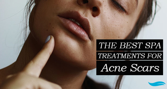 The Best Spa Treatments For Acne Scars | Jiva Spa Toronto anti aging facials beauty spa salon skin rejuvenation medispa